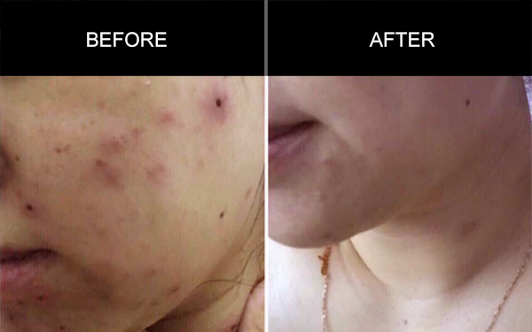 Acne Skin Testimonials, Anmyna Online, Great Results, Skincare, RESULTS YOU'LL LOVE, our customers, happy customer, before after result