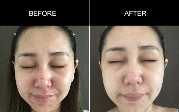 Testimonials for Anmyna Acne Care, Testimonials, Anmyna Online, Great Results, Skincare, RESULTS YOU'LL LOVE, our customers, happy customer, before after result