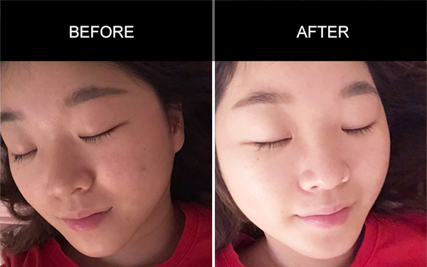 Collagen, Peptide Drink's Testimonials, Acne Skin Testimonials, Anmyna Online, Great Results, Skincare, RESULTS YOU'LL LOVE, our customers, happy customer, before after result