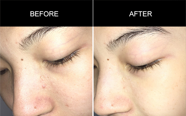 Collagen Peptide Drinks Testimonials, Acne Skin Testimonials, Anmyna Online, Great Results, Skincare, RESULTS YOU'LL LOVE, our customers, happy customer, before after result