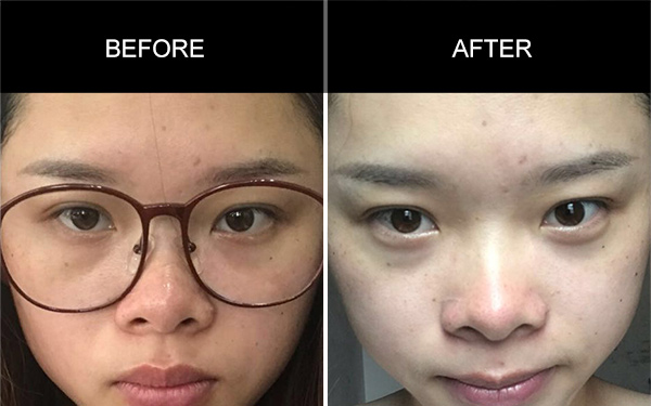 Collagen Peptide Drink's Testimonials, Acne Skin Testimonials, Anmyna Online, Great Results, Skincare, RESULTS YOU'LL LOVE, our customers, happy customer, before after result