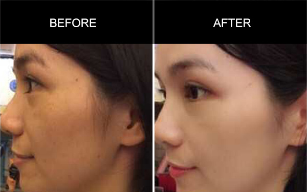 Anmyna Make Up Cream, Before and After, Testimonials, Anmyna Online, Great Results, Skincare, RESULTS YOU'LL LOVE, our customers, happy customer, before after result
