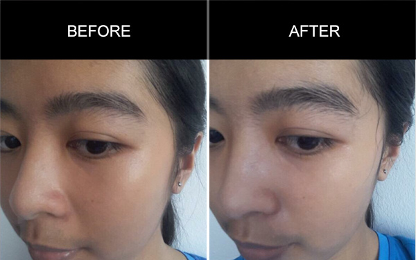 Anmyna Mask, Before and After, Testimonials, Anmyna Online, Great Results, Skincare, RESULTS YOU'LL LOVE, our customers, happy customer, before after result
