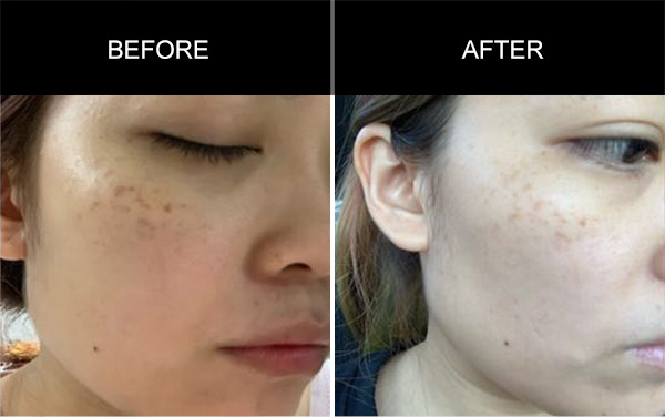 Nectar Gel Extractlotion Testimonials, Testimonials, Anmyna Online, Great Results, Skincare, RESULTS YOU'LL LOVE, our customers, happy customer, before after result